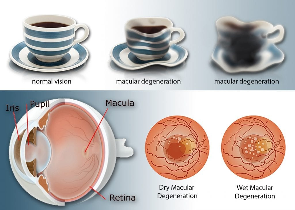 Low Vision macular degeneration