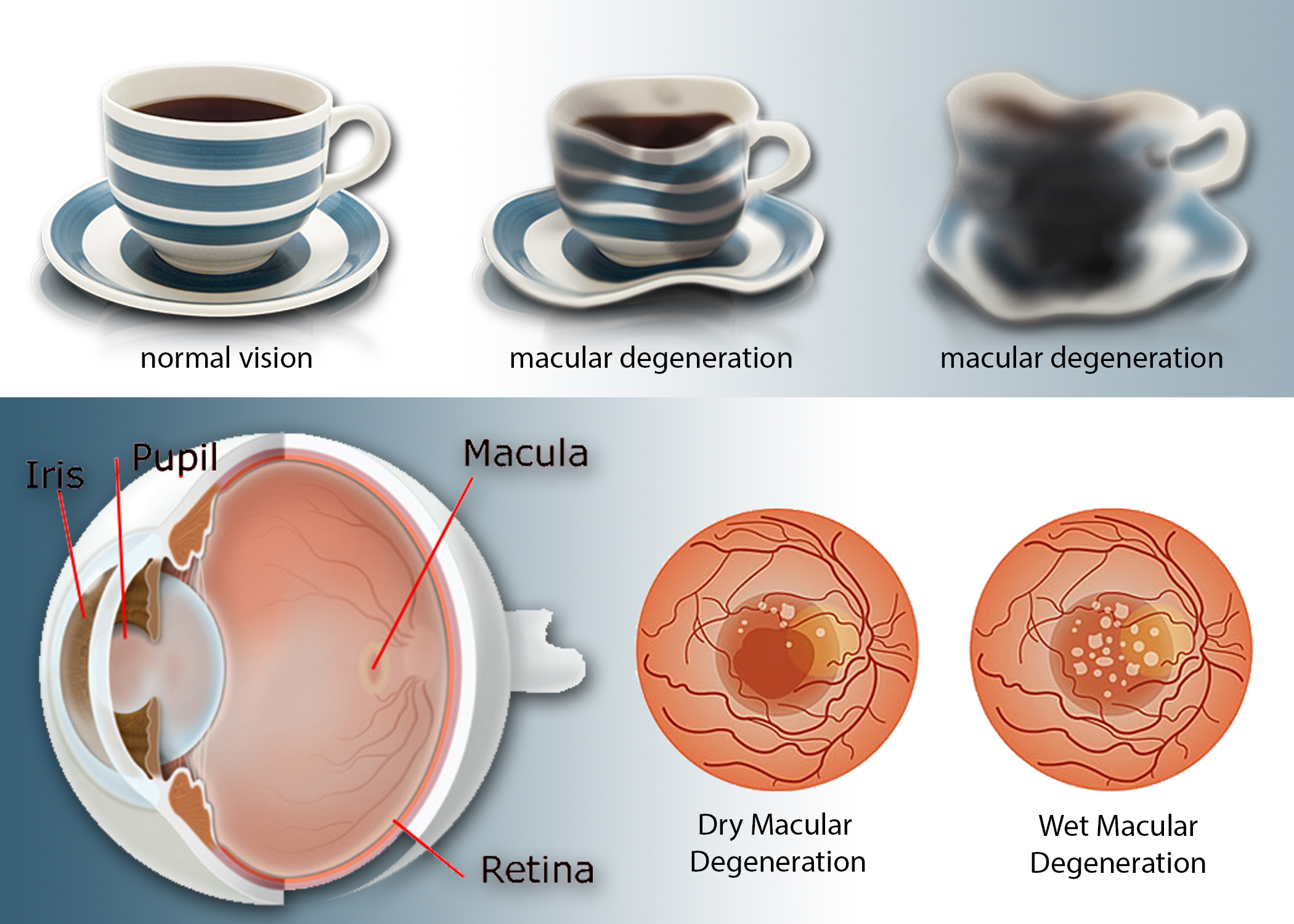A representation of possible visual effects of macular degeneration