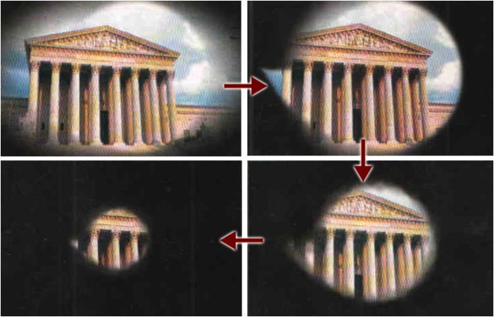 A representation of worsening visual loss from glaucoma